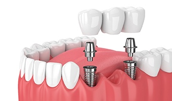 dentist working on implants