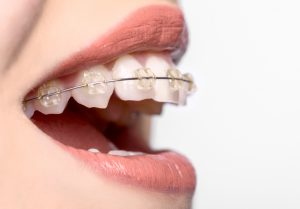 braces in prince albert