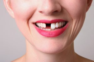 Your dentist in Prince Albert has various restorative options for you.