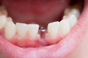 single tooth implant emerges from the jaw
