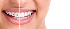 woman's smile with braces