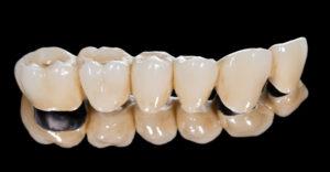 tooth colored dental bridge
