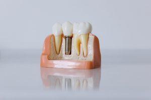 Model of single unit dental implant
